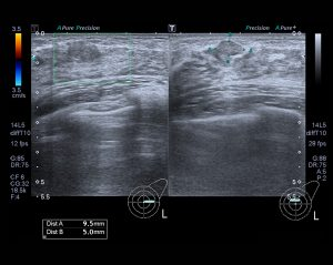 Ultrasound Image getting accurate measurements of a tumor on the right breast of a female patient