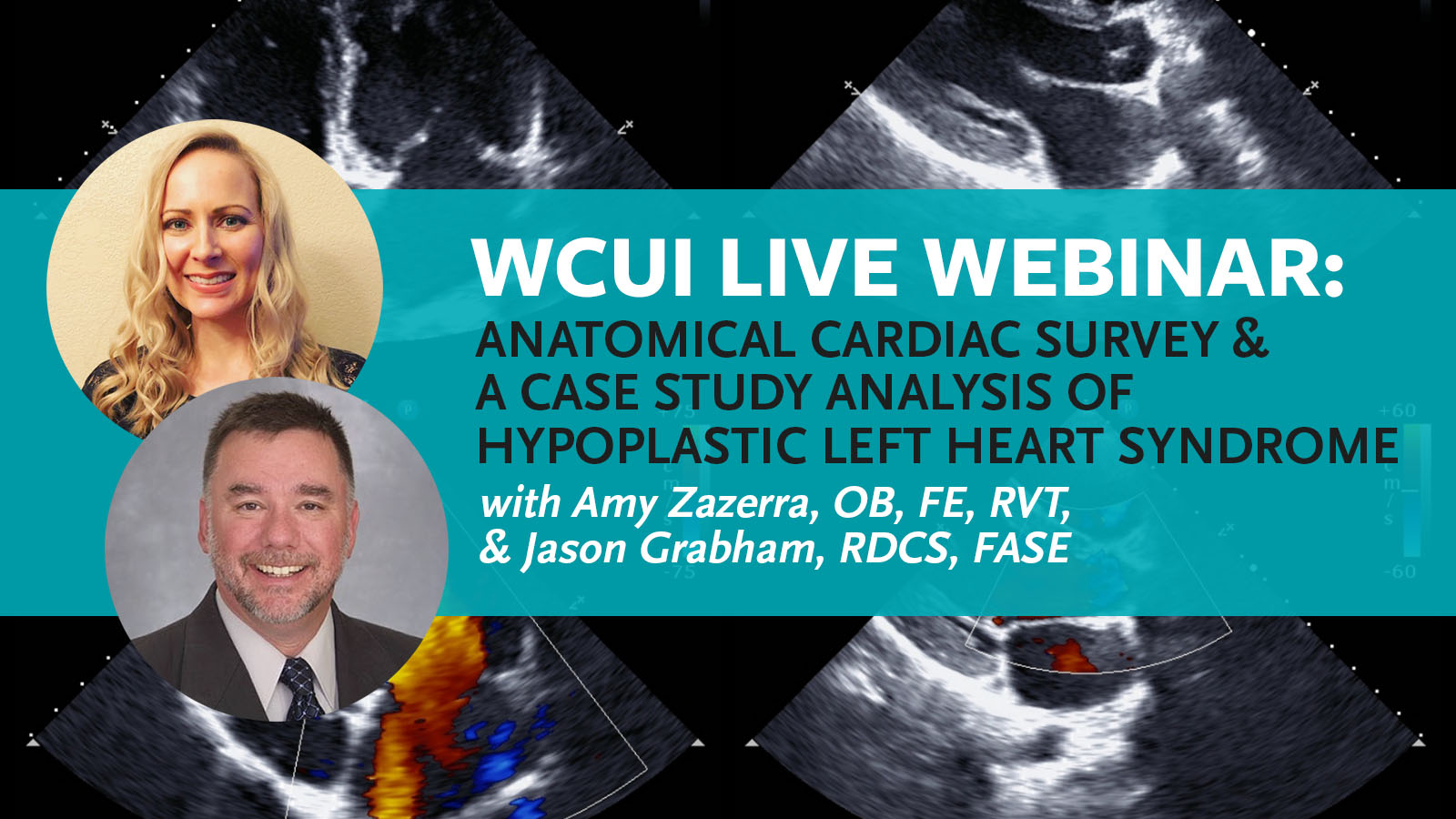 Blog Post cover shows a headshot of the Guest Speakers of the next CME webinar with Amy Zazerra and Jason Grabham